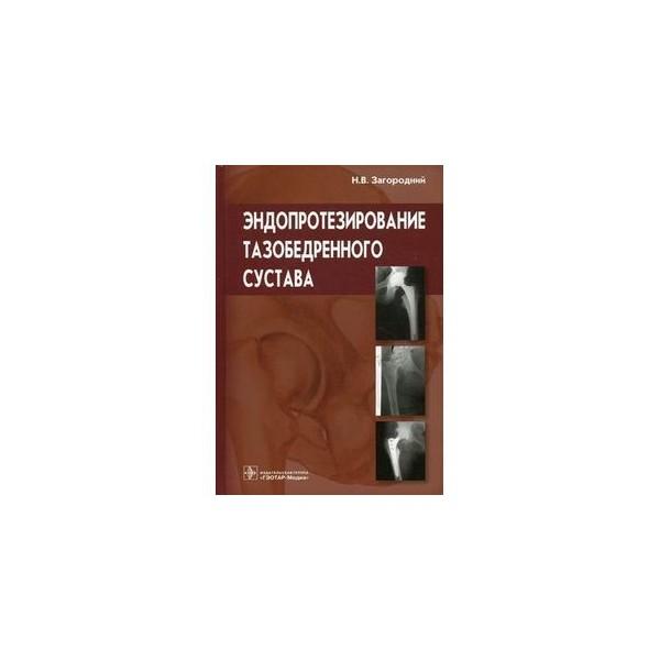Эндопротезирование тазобедренного сустава рекомендации