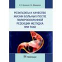 Результаты и качество жизни больных после пилоросохранной резекции желудка при раке
